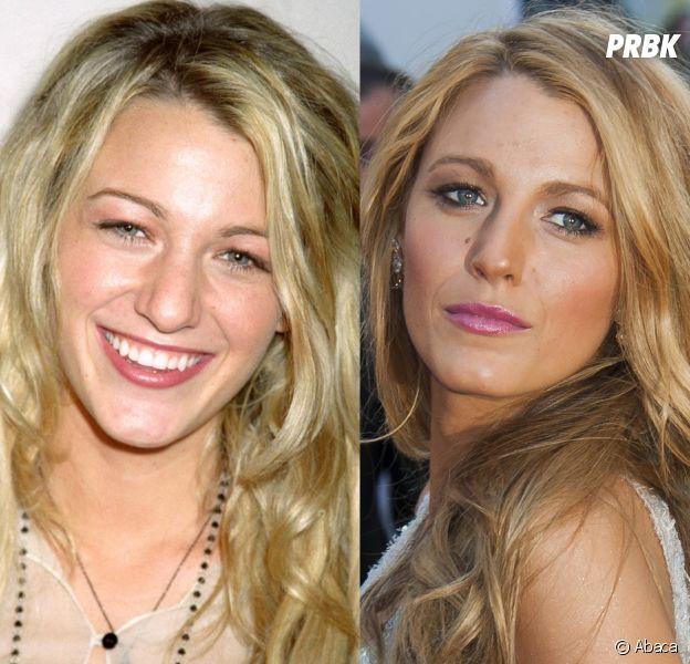 Blake Lively avant-après la chirurgie esthétique : les photos choc !