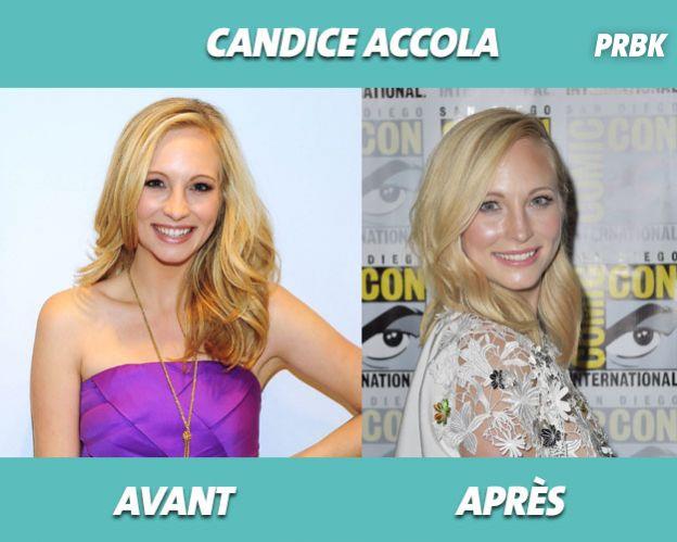 The Vampire Diaris : Candice Accola avant/après