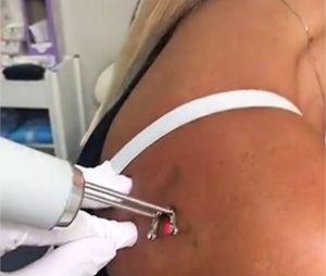 Amélie Neten se fait enlever deux tatouages sur Snapchat