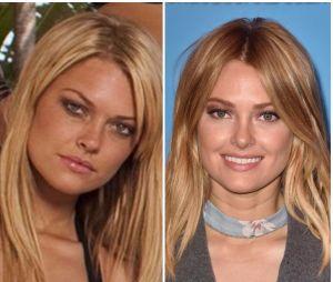 Caroline Receveur avant/après la chirurgie esthétique