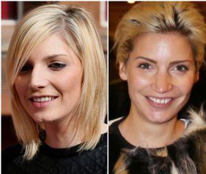 Nadège Lacroix avant/après la chirurgie esthétique