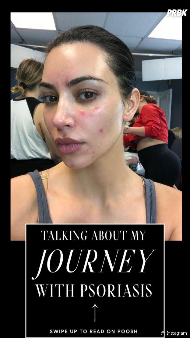 Kim Kardashian sans maquillage : elle assume ses boutons de psoriasis, les internautes valident