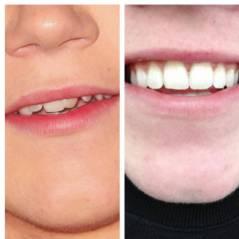 Niall Horan retrouve le sourire : bye bye son appareil dentaire