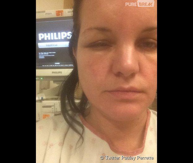 Pauley Perrette victime d'une terrible allergie