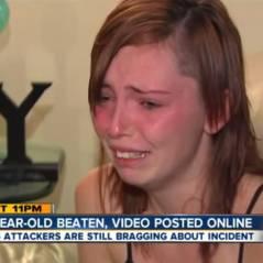 Cheyanne Willis, 19 ans, tabassée par 6 filles, rasée de force et humiliée sur Facebook