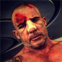 Dominic Purcell blessé sur le tournage de Prison Break : les photos sanglantes