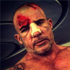 Dominic Purcell blessé sur le tournage de Prison Break : les photos sanglantes