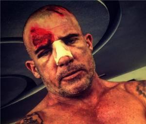 Dominic Purcell (Prison Break) blessé sur le tournage en juin 2016