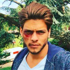 """Rayane Bensetti """"blessé"""" sur Instagram ? Fausse frayeur pour ses fans"""