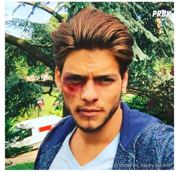 Rayane Bensetti blessé sur Instagram... pour le tournage de Clem