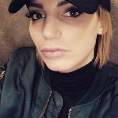 Nadège Lacroix : son nouveau nez (encore) taclé violemment sur Instagram