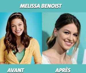 Glee : que devient Melissa Benoist ?