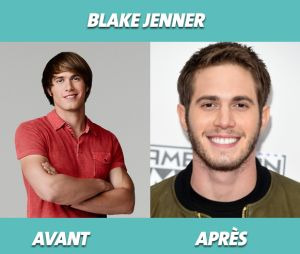 Glee : que devient Blake Jenner ?