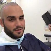 """Nikola Lozina VS la calvitie, il se rase le crâne : """"être dégarni à 23 ans, c'est pas possible"""""""