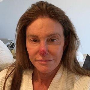 Caitlyn Jenner défigurée : elle plaisante sur son nez en sang suite à des cellules cancéreuses