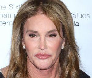 Caitlyn Jenner défigurée : le père de Kylie Jenner et de Kendall Jenner dévoile une photo choc avec le nez en sang !
