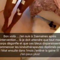 Aurélie Dotremont : nouvelles fesses et nouveaux seins, elle dévoile son corps après la chirurgie