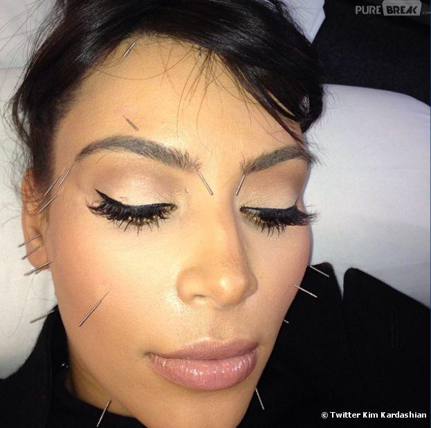 Kim Kardashian s'est fait une séance d'acuponcture