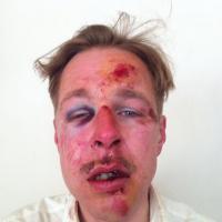 Homophobie : Wilfred, le visage en sang sur Facebook pour dénoncer les agressions