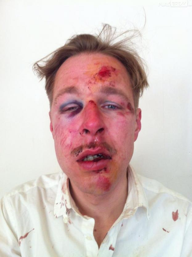 Wilfred, un visage pour dénoncer l'homophobie