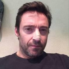 Hugh Jackman, atteint d'un cancer de la peau