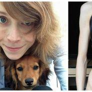 Une étudiante anorexique guérit de sa maladie grâce... à son chien