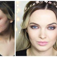 Injuriée sur Instagram à cause de son acné, cette YouTubeuse répond avec une superbe vidéo !