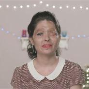 Victime d'une attaque à l'acide, une Youtubeuse passe un message avec un tuto beauté