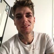 """Victime d'une agression homophobe, il émeut Facebook : """"vous ne m'empêcherez pas d'aimer mon mec"""""""