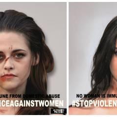 Kendall Jenner, Kristen Stewart, Emma Watson : défigurées pour sensibiliser aux violences conjugales