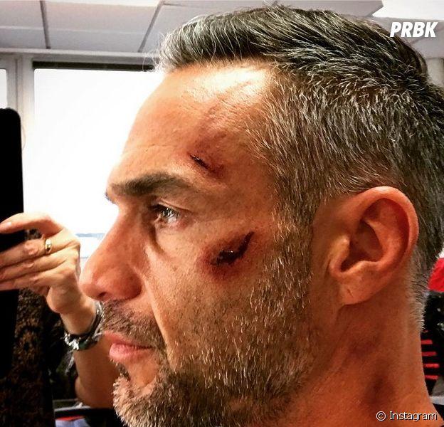 Profilage saison 8 : Philippe Bas (Rocher) blessé sur le tournage