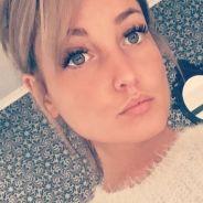 Aurélie Dotremont accusée d'avoir fait de la chirurgie esthétique : elle répond