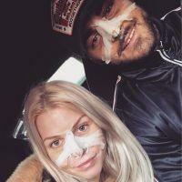 Jessica Thivenin et Thibault Kuro : surprise, ils ont subi une opération de chirurgie esthétique !