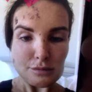 """Marie Garet """"défigurée"""" : en larmes, elle dévoile des photos choc de son accident"""