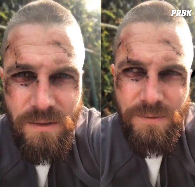 Arrow saison 7 : Stephen Amell souffre comme jamais sur le tournage, Oliver en danger ?