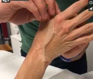 Pamela Anderson dévoile une vidéo de sa main blessée