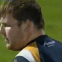 Un rugbyman gallois devient borgne à la suite d'un match