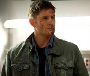 Supernatural saison 9 : Dean va souffrir