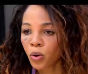 Louisy Joseph blessée pendant les répétitions de Danse avec les stars 2014