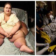 Cette femme pesait 500 kilos, elle en a perdu près de 400, aujourd'hui, elle est méconnaissable !