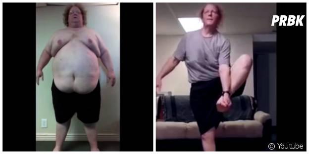 Perte de poids extrême pour Jared Mollenkopf