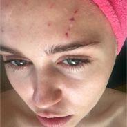 Miley Cyrus blessée sur Instagram à cause... d'un chat !