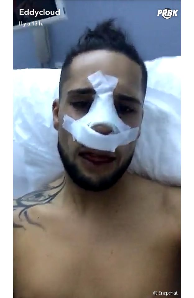 Eddy (La villa des coeurs brisés 2) se filme après son opération
