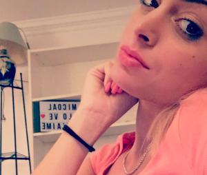 Mélanie Da Cruz après son repulpage des lèvres