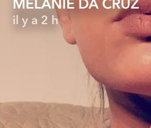 Mélanie Da Cruz avant son repulpage des lèvres