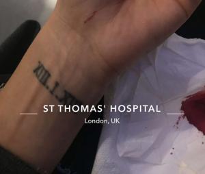 Nabilla Benattia à l'hôpital : elle dévoile sa blessure sur Snapchat