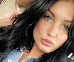 Aurélie Dotremont a encore cédé à la chirurgie esthétique : elle a fait refaire son nez.