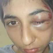 Violences policières : le témoignage choc de Gabriel, 14 ans, défiguré après une interpellation