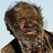 [INSOLITE] L'homme le plus sale du monde ne s'est pas lavé depuis 60 ans