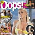 Amélie Neten en Une du magazine Oops pour son opération aux oreilles